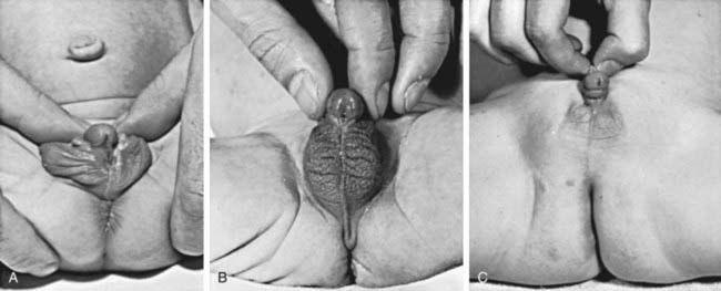 clitoris infant Large girls in