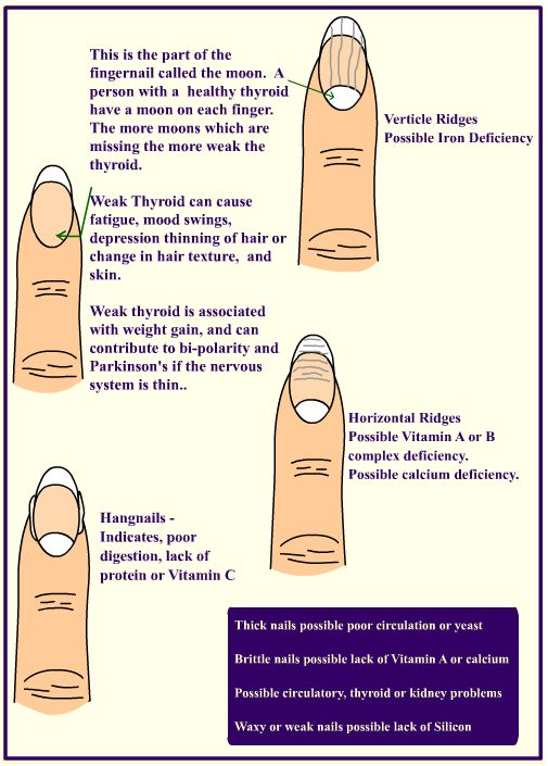 To view a very informative and interactive infographic that outlines all different nail shapes and abnormalities and their possible causes, please click here.  Image Source: http://3.bp.blogspot.com/-GgLKK2A4j2A/U9pJV0f-V4I/AAAAAAAAQlM/KdrZGY-uwsw/s1600/ridges-nails-final.jpg