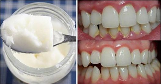 Even though the vast majority of people know that adequate dental care includes brushing, mouthwash and dental floss, there are many people who are not aware of the amazing benefits of using coconut oil as