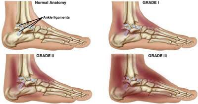 WHAT IS A SPRAIN? A sprain is an injury to one of the ligaments in your ankle. Ligaments are tough bands of tissue that hold you bones together There are three differ the grades of ankle injuries, Grade 1 means that the ligament is stretched but not torn. Grade 2, the ligament is partially torn and Grade 3 means the ligament is fully torn. You may have a higher risk of spraining an ankle if you have had a previous injury, walk, run or play on an uneven surface, wear shoes that don't fit…