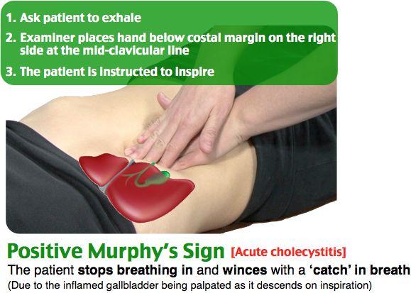 #Murphy's #Sign #Cholecystitis