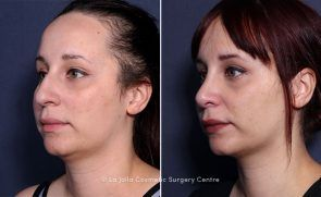 Welcome La Jolla Cosmetic Surgery Centre How To Memorize Things Cosmetic Surgery Surgery Center