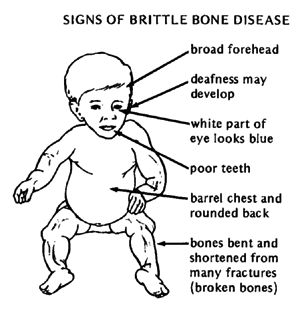 Osteogenesis Imperfecta- The term osteogenesis imperfecta (OI) covers a group of genetic disorders that mostly affect the bones. Ostoegenesis imperfecta or OI is also referred to as brittle bone disease.