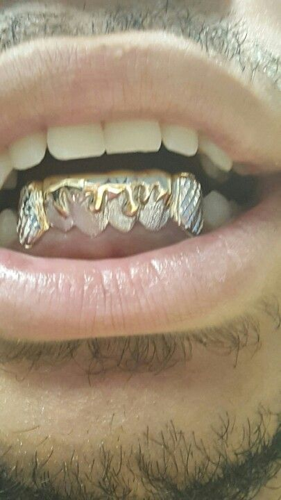 Custom #dripping style with gold #crush #diamond #stone finish texture and #diamondcuts on the k9.... #customjewelry #Goldteeth #Grillz #Chicago #Grills #Chigrillz  Call or Text (312)925-5217  online http://www.chigrillz.com & http://www.chi-grillz.com