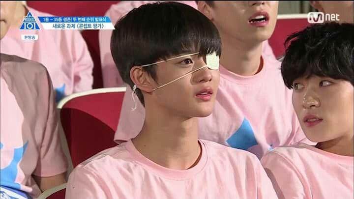 Bae Jinyoung aka eyepatch boi
