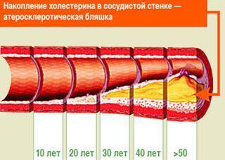 Рецепты здоровья дает врач-гастроэнтеролог Антонина Александровна Щипина.Берем 300 г чеснока и заливаем 0,3 л спирта, настоять 21 день. Процедить и пить на завтрак 1 каплю, в обед 2 капли, на ужин…