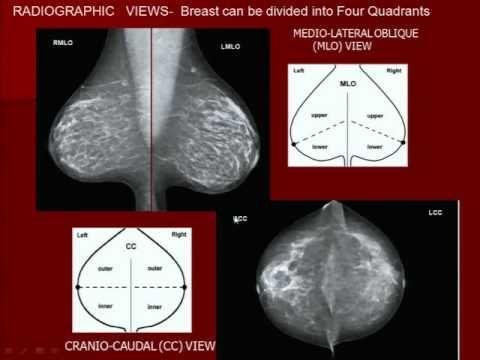 192 best Mammography images on Pinterest Breast cancer survivor - mammography resume