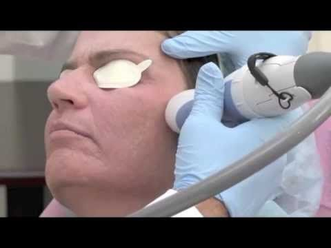 Improve Acne Scars and Skin Imperfections with the Palomar Laser