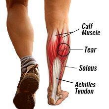 Calf Strain   Calf strain, Torn calf muscle, Muscle tear