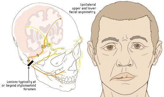 bells palsy facial nerve | Figure 7-10. Bell's Palsy: Lower Motor Neuron (LMN) Lesion.