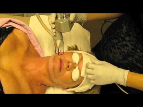 The carbon dioxide CO2 laser is often used for skin resurfacing treatments that can be performed on an outpatient setting.