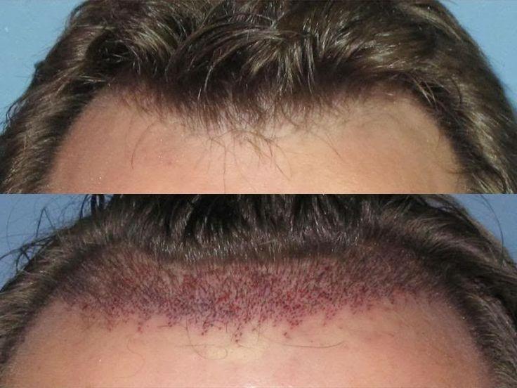 Best ILHT PAKISTAN Images On Pinterest Pakistan Hair - Custom vinyl decal application fluidhow to make decal application fluidhair loss surgery