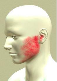 FIZJOTERAPIA stawu skroniowo żuchwowego - #DeClinic #fizjoterapia #warszawa #zuchwa #skron #staw #zdrowie #bol #stomatolog #dentysta