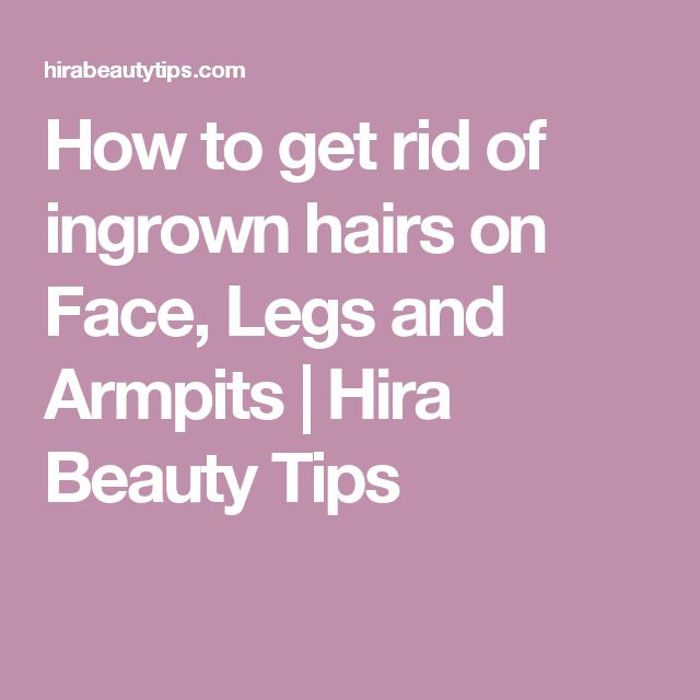 How to get rid of ingrown hairs on Face, Legs and Armpits | Hira Beauty Tips