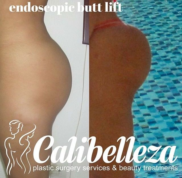 🙀 endoscopic butt lift- the real deal! Contact us to get you started on your journey and follow us on IG @calibellezaa