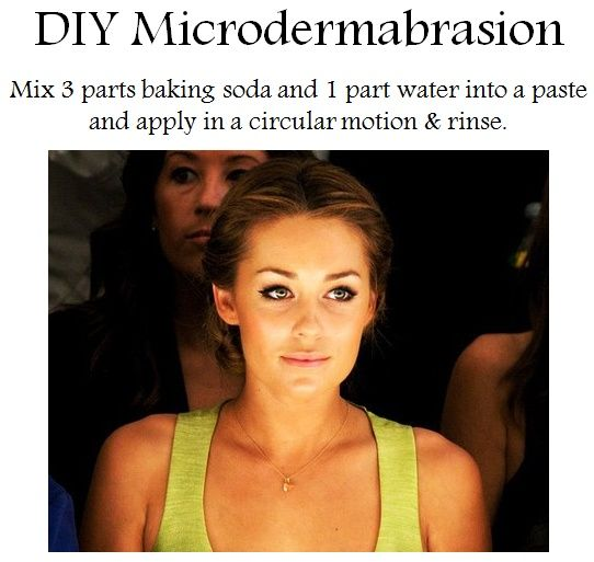 Lauren's Microdermabrasion! I do this every week! My skin looks and feels amazing. As is I don't wear foundation-- EVER, because of this... and water, but mainly this ;)