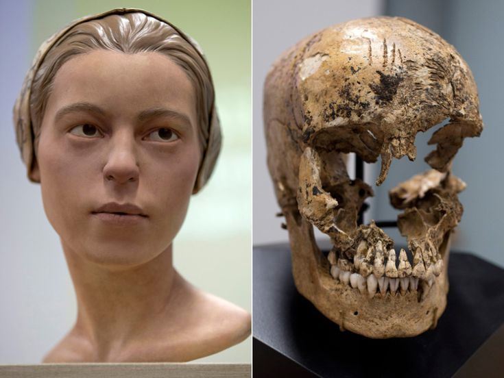 Strike marks are seen on the skull of Jane of Jamestown during a news conference at the Smithsonians National Museum of Natural History. Scientists announced during the news conference that they have found the first solid archaeological evidence that some of the earliest American colonists at Jamestown, Va., survived harsh conditions by turning to cannibalism presenting the discovery of the bones of a 14-year-old girl, Jane that show clear signs that she was cannibalized..