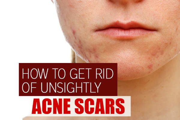 If you have acne-prone skin, you may have become accustomed to some breakouts leaving scars behind. But that doesn't mean you have to just accept those unsightly marks on your forehead, chin, neck, shoulders or wherever acne decided to make its presence. Acne scars are the bane of existence for anyone with recurring acne. While …