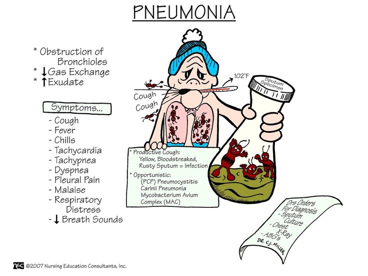 nursingnerds:  Pneumonia: an accumulation of fluids secondary to the inflammation of tissue, which interferes with gas exchange.  Signs and Symptoms: fever, cough, chest pain, chest tightness, chills (upon auscultation of the chest, you will hear crackled breath sounds or diminished breath sounds at the bases). Diagnostics: chest x-ray, sputum culture, WBC, ABGs.  Drug Therapy: antibiotics, analgesics, steroids, antipyretics. Nursing Care: teaching about medication and O2 therapy is needed…