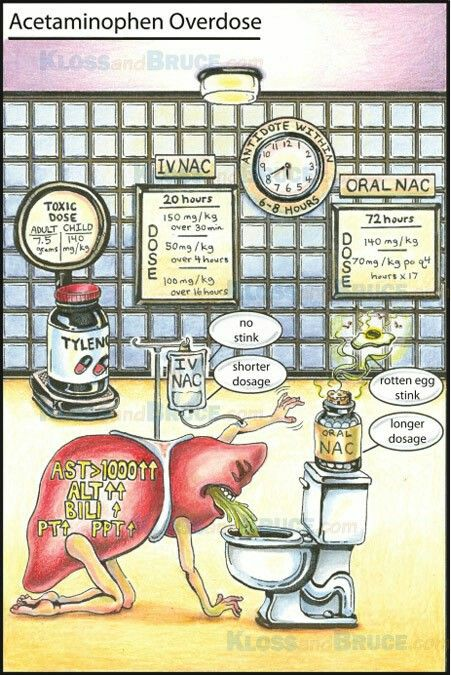 Acetaminophen/Paracetamol toxicity...