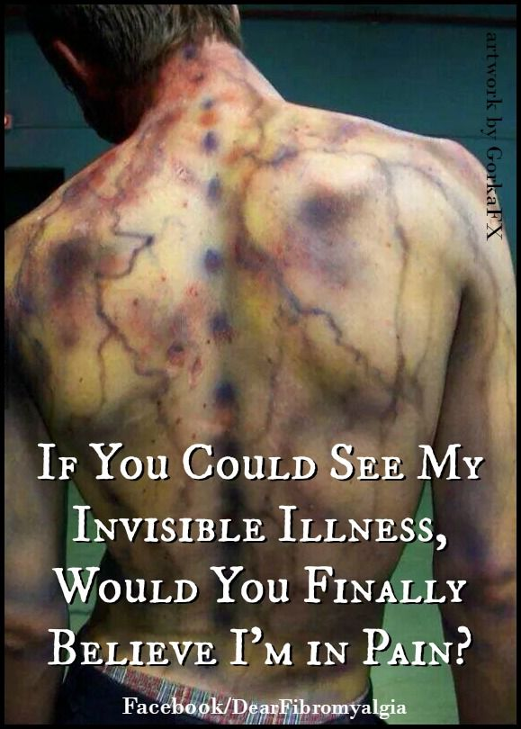 """If you could see my invisible illness, would you finally believe I'm in pain?"""