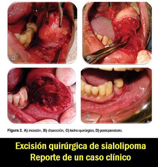 PDF: Excisión quirúrgica de sialolipoma. Reporte de un caso clínico   OVI Dental