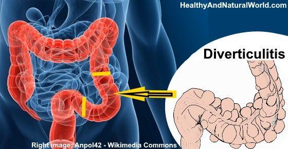Natural Remedies For Diverticulitis Disease