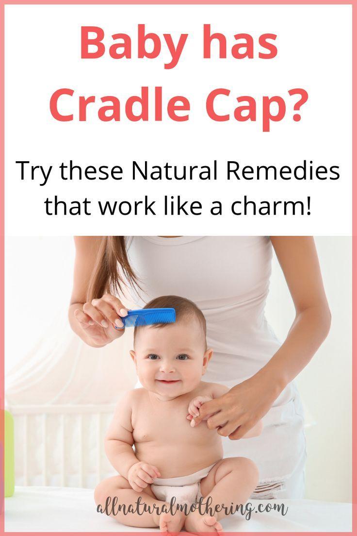Natural Cradle Cap Remedies That Work Like A Charm Baby Cradle Cap Cradle Cap Cradle Cap Remedies