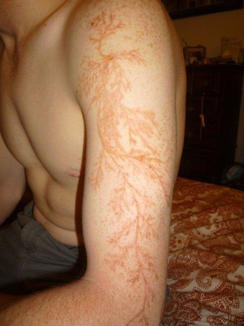 "IIF YOU ARE STRUCK BY LIGHTENING (AND SURVIVE) YOU ARE LEFT WITH A VERY SPECIAL SCAR It's called ""Lichtenberg figure"". Plus: Lichtenberg Figures: The Fractal Patterns of Lightning Strike Scars"
