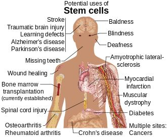 Google Image Result for http://upload.wikimedia.org/wikipedia/commons/thumb/b/bd/Stem_cell_treatments.svg/330px-Stem_cell_treatments.svg.png