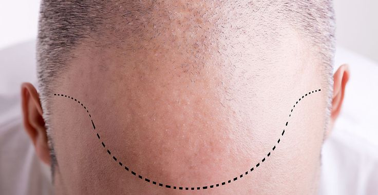 WHAT EXACTLY IS THE COST OF HAIR TRANSPLANTS?