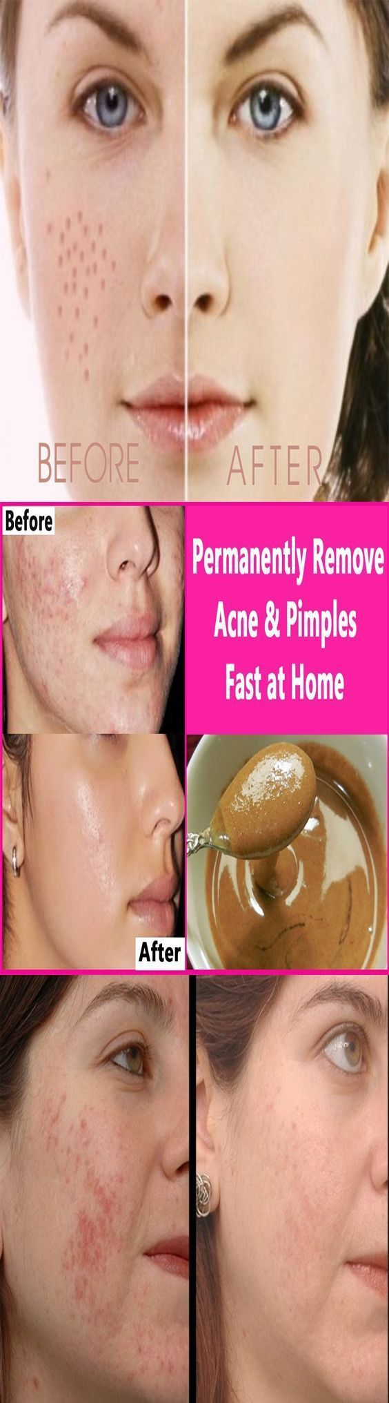 Deep scar removal home remedies