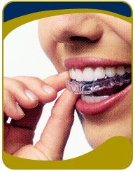 Invisalign is the clear way to straighten teeth without braces, using aligners. Aligners are removable and virtually invisible,