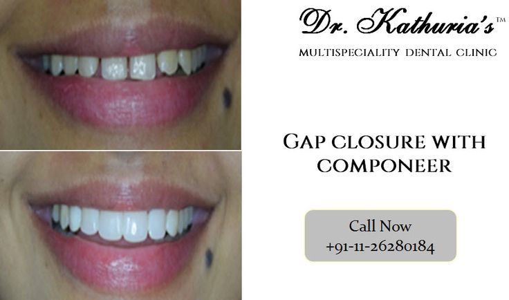 Gap Closure Treatment done at Dr. Kathuria's Multispeciality Dental Clinic #GapClosure