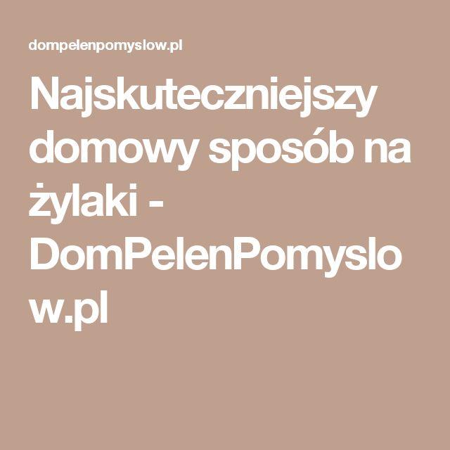 Najskuteczniejszy domowy sposób na żylaki - DomPelenPomyslow.pl