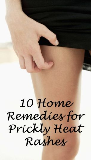 10 Home Remedies for Prickly Heat Rashes | 5WaysTo.net