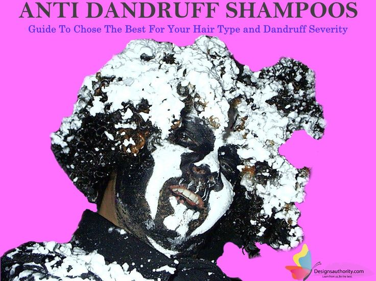 Anti Dandruff Shampoo - [The Best Shampoo for Dandruff Severity]