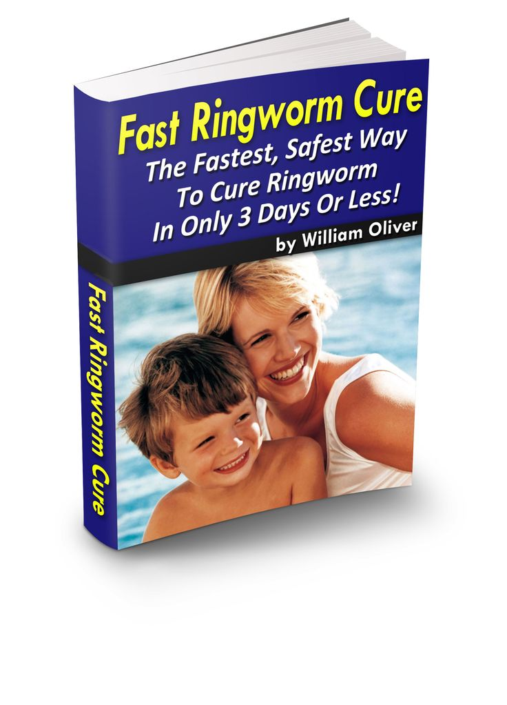 Fast Ringworm Cure – The #1 Natural Ringworm Treatment Method