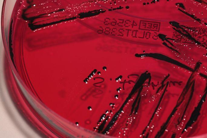 Salmonella typhimurium on XLD-Agar
