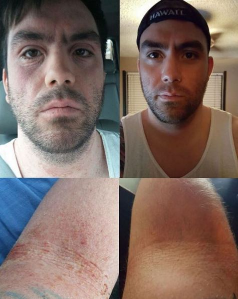 """Jack, 28, started Dr Aron's treatment in October on 4 applications a day, now down to 2 a day. He was in topical steroid withdrawal for about a year and a half. """"Life is great now. I can do everything I love to do again, and I'm not weighed down by that pain anymore! I still flare periodically but it's maintainable."""""""