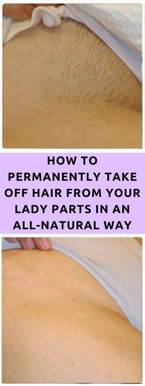TAKE A LOOK AT HOW TO PERMANENTLY TAKE OFF HAIR FROM YOUR LADY PARTS IN AN ALL-NATURAL WAY JUST BY APPLYING THIS HOMEMADE MIXTURE