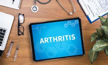 Ρευματοειδής αρθρίτιδα: Νέα ερευνητικά δεδομένα για συνδυαστική θεραπεία στο «The Lancet»