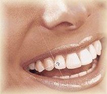 Teeth Jewelry - ....forget tattoos and piercing! A new craze is sweeping across the US, that will make you shine like a star... To really be glamourous, tantalize your teeth with top-quality tooth jewelry from DecoDent!