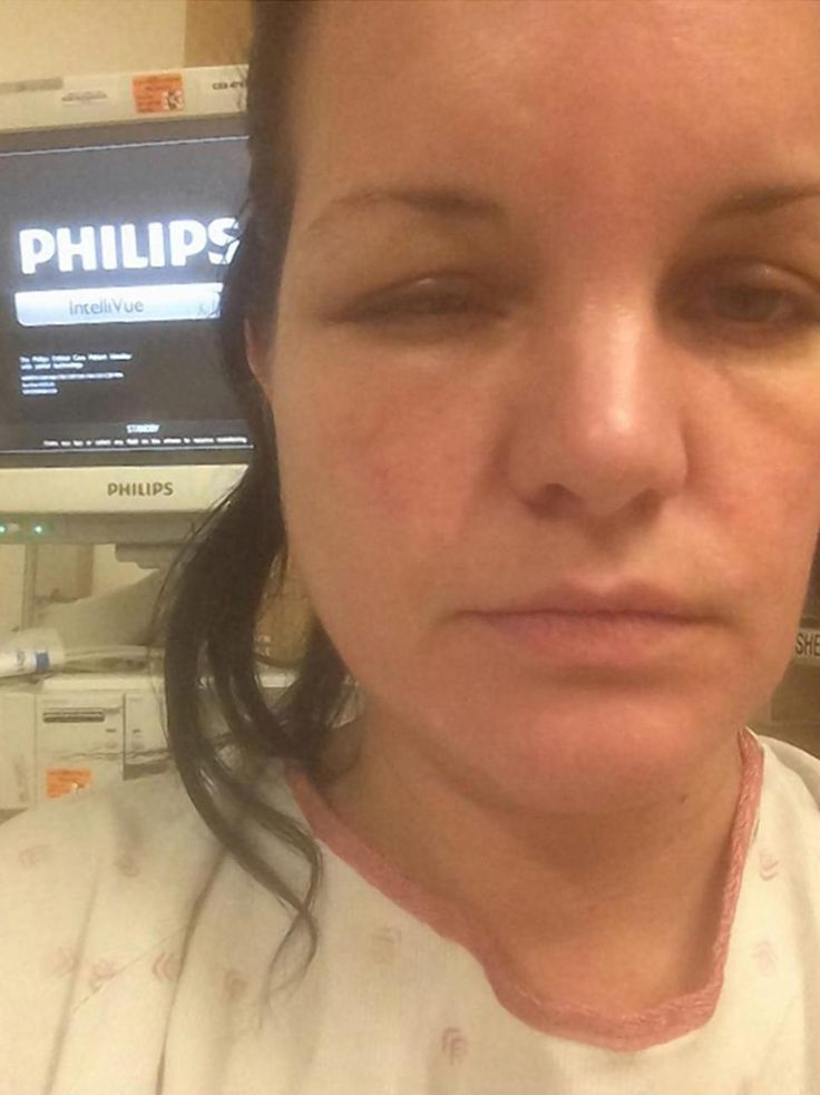 Mother hospitalised for three days after allergic reaction to hair ncis star hospitalized after severe allergic reaction to hair dye pmusecretfo Choice Image
