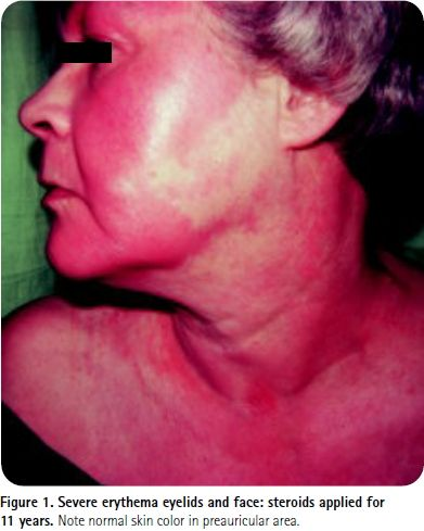 topical steroid withdrawal symptoms erythema eyelids and face