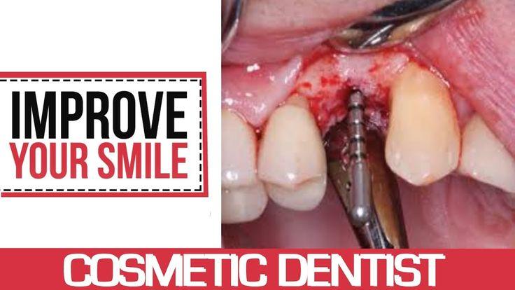 Implant Dentistry Orange County - Dental Implants Orange County | Perman...