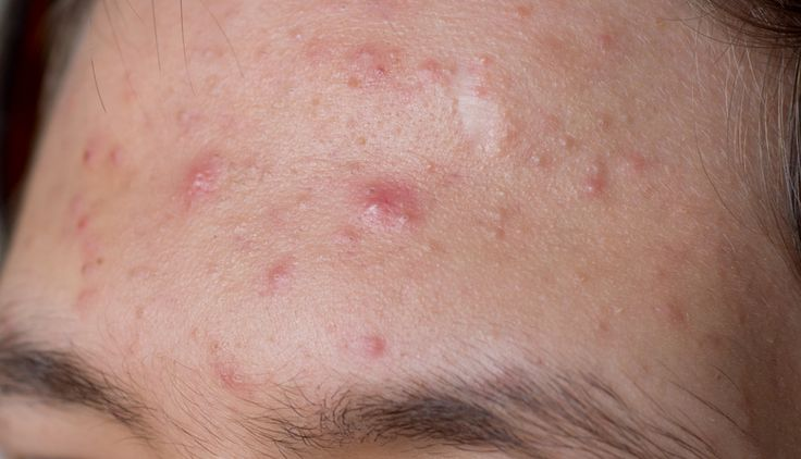Le sérum qui combat l'acné à tester d'urgence noté 3.63 - 16 votes Quand on souffre d'acné, le réflexe est souvent d'appliquer des produits abrasifs dont on croit qu'ils seront plus efficaces que tous les autres pour retirer les « saletés » et le « gras ». Au final, il s'avère qu'à trop vouloir décaper la peau, cette dernière...