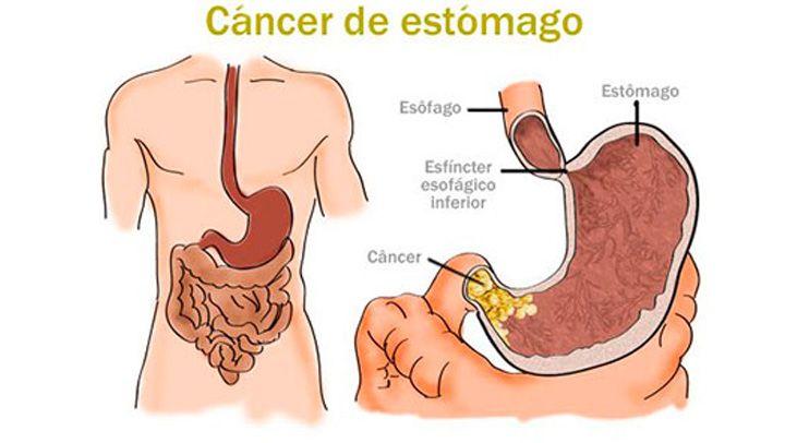 Si tu padeces de cáncer de estómago y no lo sabes, estos son los signos claros que lo indican