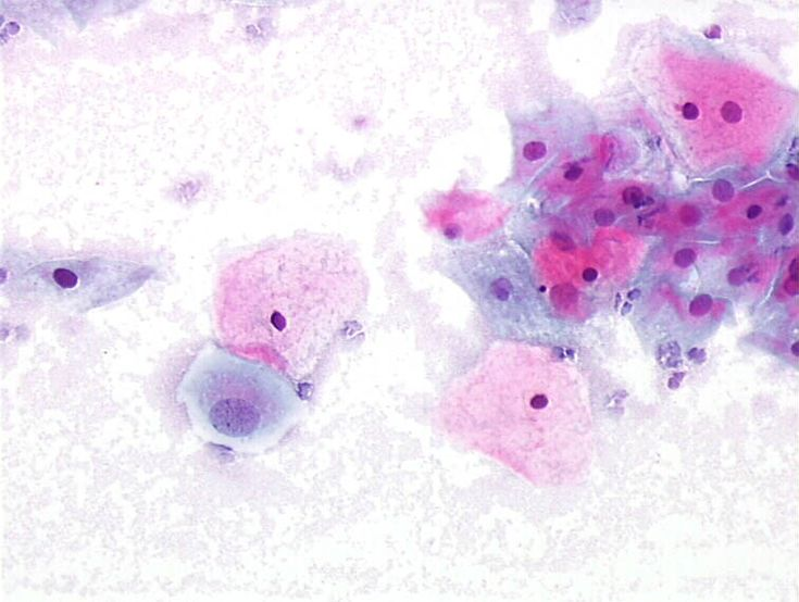 Gardnerella vaginalis: bacteria are seen in the background, mainly on squamous cells resulting in clue cells. Polymorphs are absent or rare. An intermediate squamous cell with an enlarged nucleus. (obj. 20x)