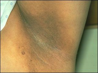 Page Contents1 What Is Acanthosis Nigricans?2 Acanthosis Nigricans Symptoms3 Acanthosis Nigricans Causes4 Acanthosis Nigricans Diagnosis5 Acanthosis Nigricans Treatment6 Pictures of Acanthosis Nigricans7 Acanthosis Nigricans in Children8 Acanthosis Nigricans and Diabetes9 Benign Acanthosis Nigricans10 Acanthosis Nigricans Mailgnancy11 Treatment for Acanthosis Nigricans With Creams?12 Acanthosis Nigricans in Dogs Suffering from creases or markings on your skin? Has …